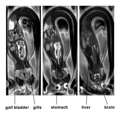 MRI of antactic eelpout